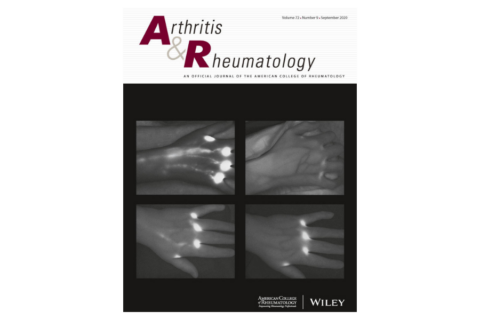 Altered Lymphatic Vessel Anatomy and Markedly Diminished Lymph Clearance in Affected Hands of Patients With Active Rheumatoid Arthritis