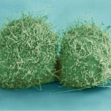 La microbiota juega un papel fundamental en la salud de…