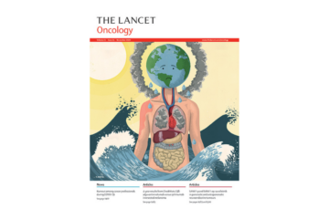 Implementing preoperative endocrine therapy in breast cancer