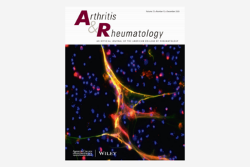 Identification of Clinically and Pathophysiologically Relevant Rheumatoid Factor Epitopes by Engineered IgG Targets