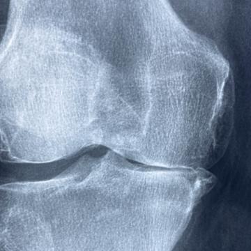 ConArtritis ofrece ayuda y asesoramiento a personas con artritis durante…