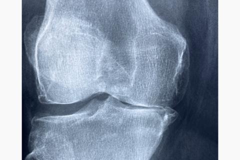 ConArtritis ofrece ayuda y asesoramiento a personas con artritis durante la pandemia