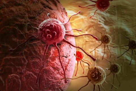 Explican cómo el cáncer de páncreas consigue eludir la inmunoterapia