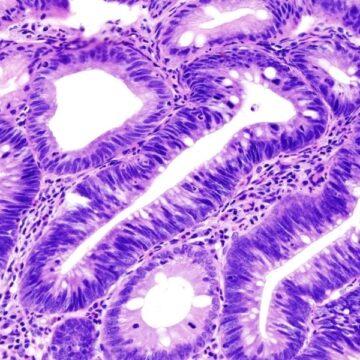 Imagenología, mejor opción en detección de cáncer colorrectal
