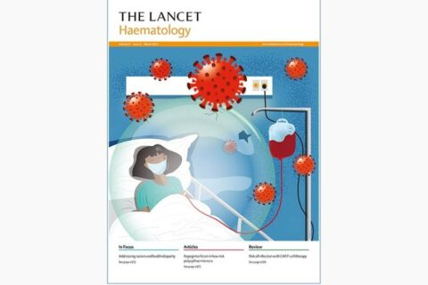 Clinical characteristics and outcomes of COVID-19 in haematopoietic stem-cell transplantation recipients: an observational cohort…