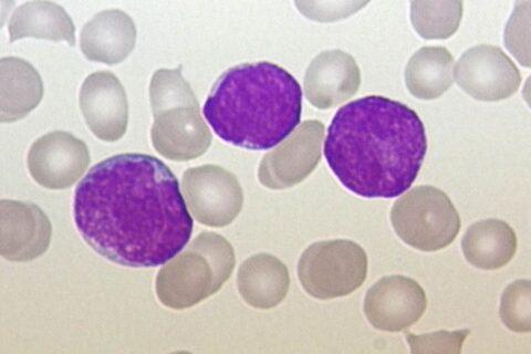 La Aemps aprueba el primer CAR-T europeo para leucemia linfoblástica aguda