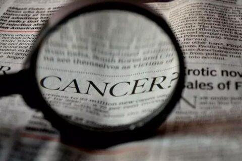 Un nuevo enfoque con células CAR-T minimiza la resistencia y ayuda a evitar recaídas en linfoma no Hodgkin de células B