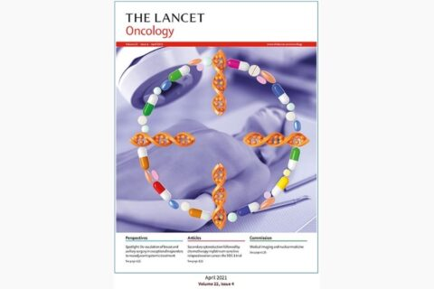 70-gene signature as an aid for treatment decisions in early breast cancer: updated results of the phase 3 randomised MINDACT trial with an exploratory analysis by age