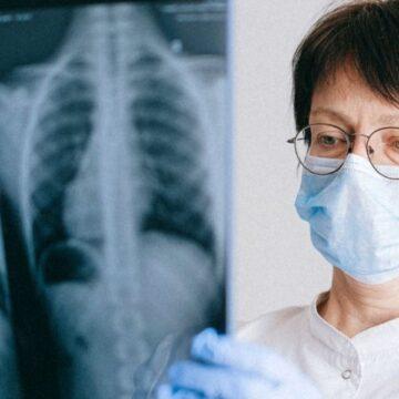 La biopsia líquida, capaz de detectar precozmente el cáncer de…