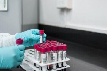 El 'big data' genético favorece el diagnóstico del cáncer hematológico
