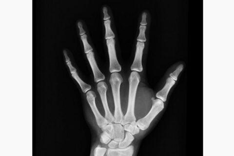 Los equipos FLS mejoran el manejo y control de la osteoporosis